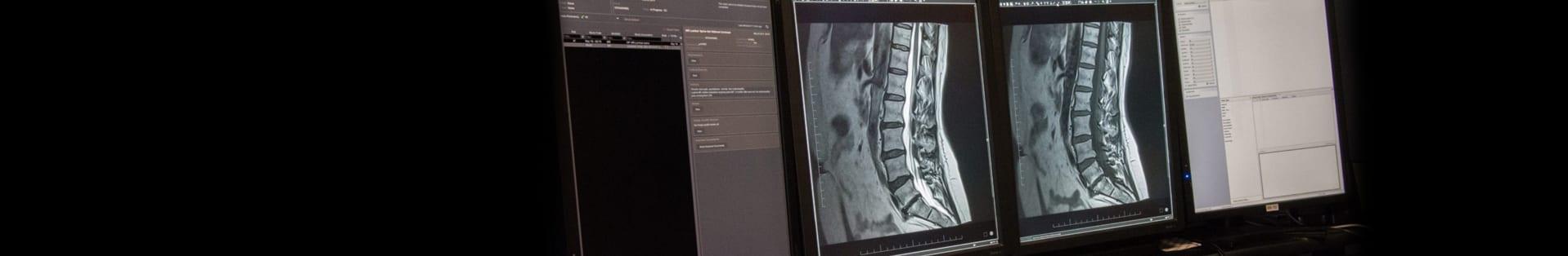 radiologist-header-skagit